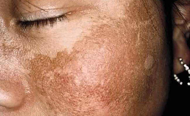 Common Skin Conditions in Black Skin