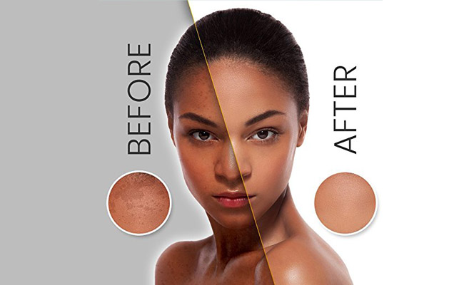 Best Bleaching Cream for Black Skin
